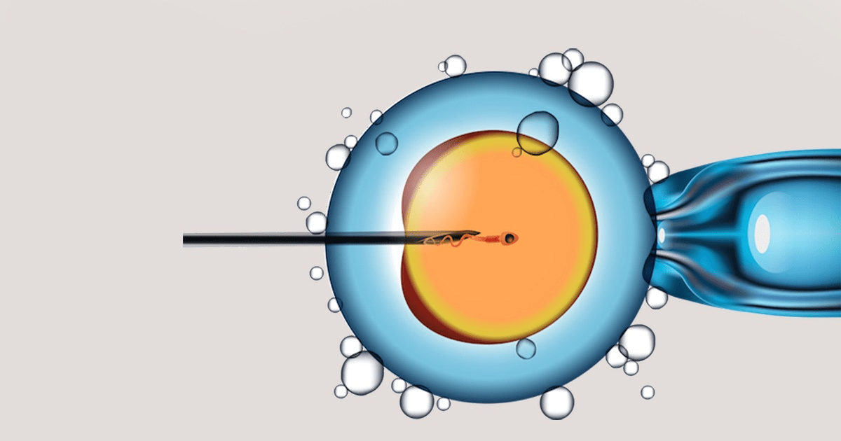 IVF vs. IUI: What are the Differences?